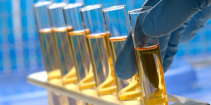 тест на наркотик в моче